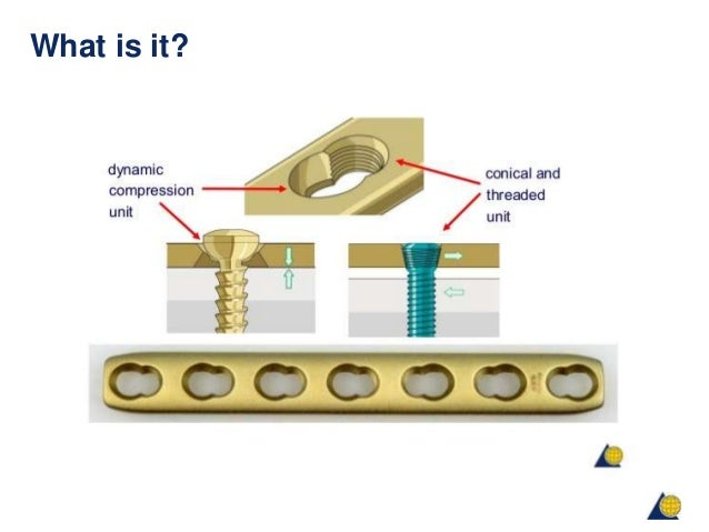 Principles of lock plate fixation ao is it good sciox Image collections