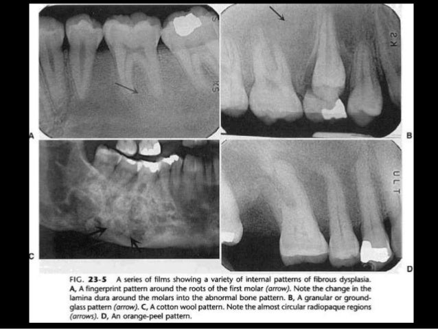 dental radiography principles and techniques 5th edition pdf