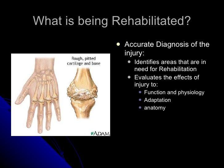 Principles of rehabilitation of orthopedic patients