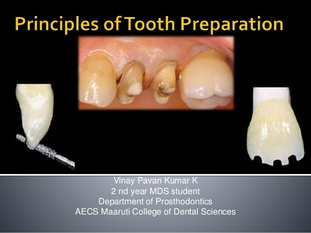 Vinay Pavan Kumar K 2 nd year MDS student Department of Prosthodontics AECS Maaruti College of Dental Sciences