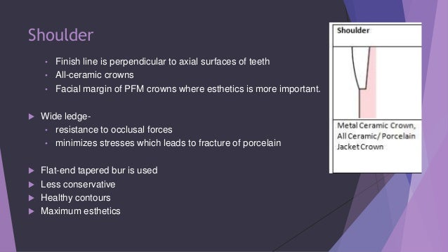 Principles Of Tooth Preparation