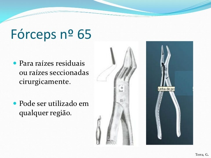 Fórceps nº 65 Para raízes residuais  ou raízes seccionadas  cirurgicamente. Pode ser utilizado em  qualquer região.     ...