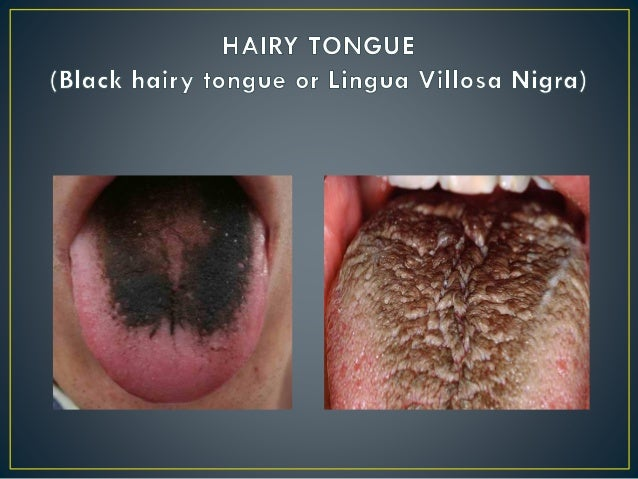 Hairy Tongue From Chewing Tobacco