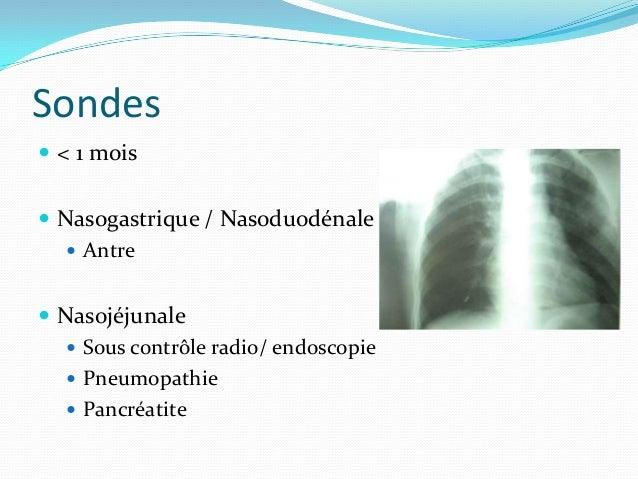 Stomies > 1 mois Gastrostomie per endoscopique    Sous AG    Jonction antre-fundus    Apports prescrits : 95% VS 55%...