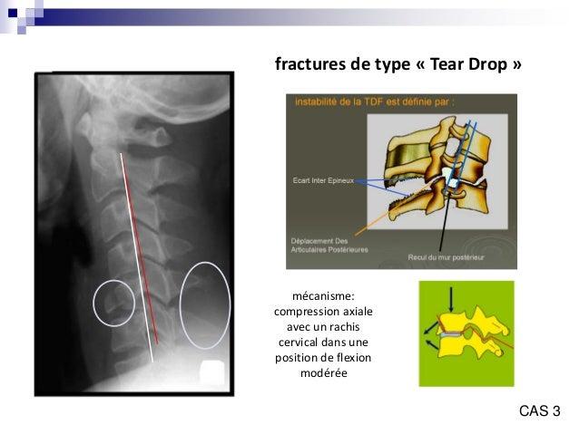Fracture du rachis cervical pdf