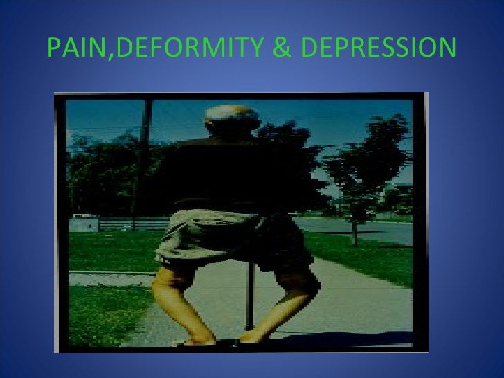 osteoarthritis knee priyank Slide 3