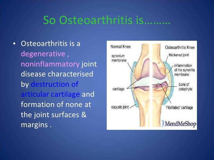 Osteoarthritis knee priyank 8 ccuart Image collections
