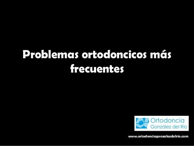 Problemas ortodoncicos más frecuentes www.ortodonciagonzalezdelrio.com