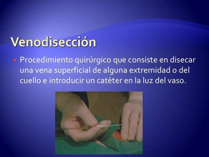 VENODISECCION TECNICA QUIRURGICA PDF DOWNLOAD