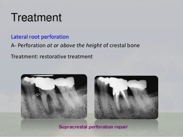 Procedural accidents in root canal treatment last one