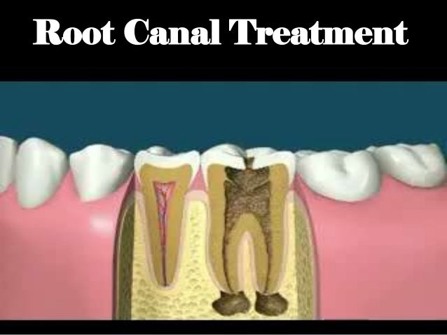 Procedural accidents in root canal treatment last one Slide 2