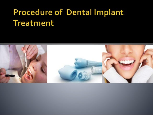A dental implant is a procedure in dentistry in which an artificial tooth root that holds a prosthetic tooth in place does...