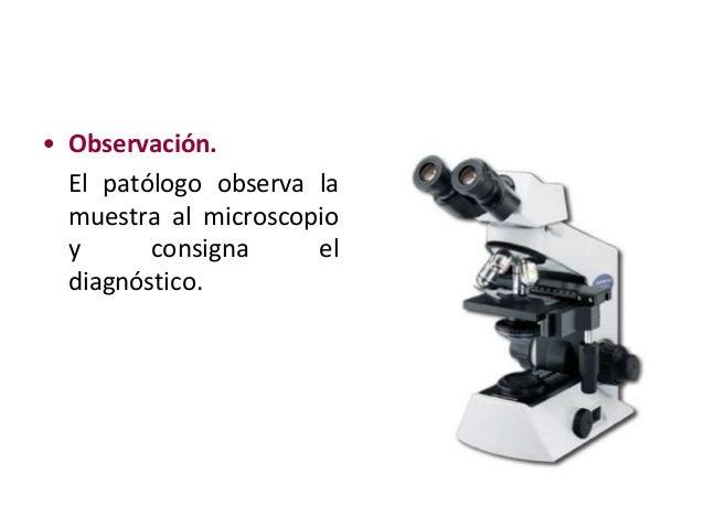 Procesamiento de Muestras para Anatomía patológica