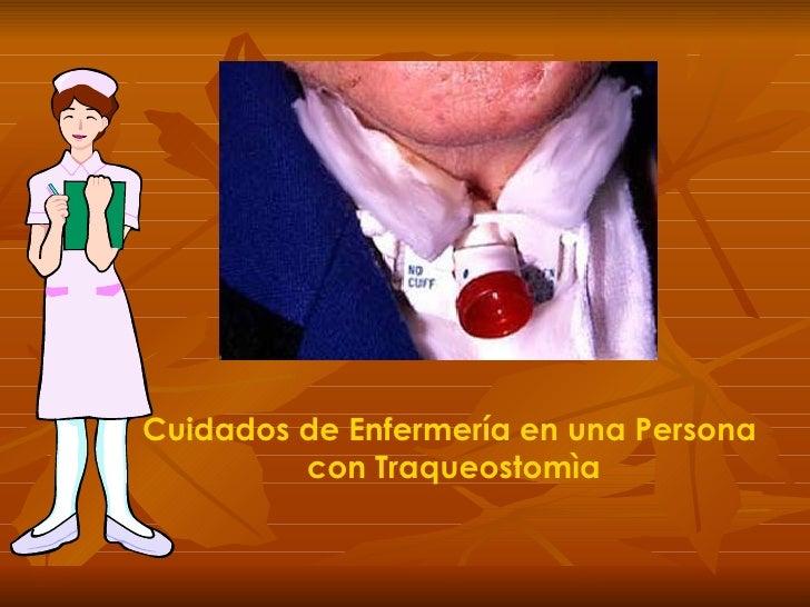 Proceso de cuidados de enfermer a a personas con traqueostomia - Cuidados de una hortensia ...