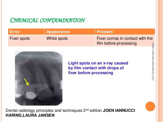 Processing x rays /endodontic courses