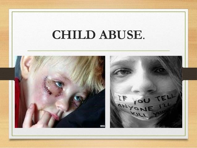 CHILD ABUSE.