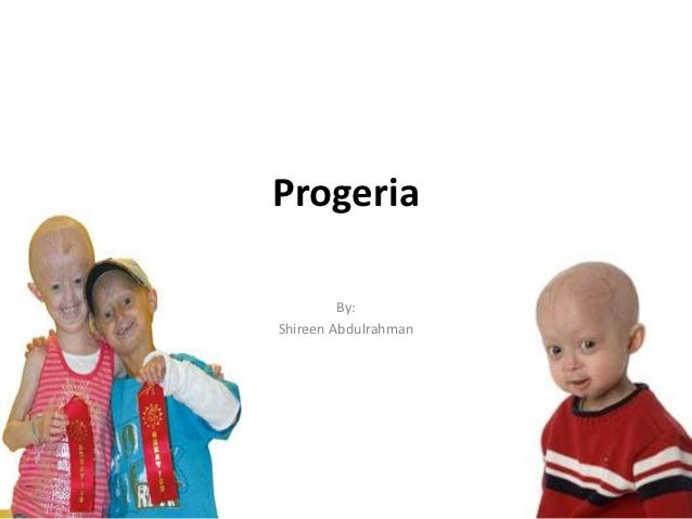 Progeria         By:Shireen Abdulrahman