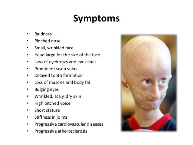 an analysis of progeria illness and the symptoms Due to the rarity and complexity of hgps, there is currently no known cure however, there are a variety of treatments aimed at alleviating the symptoms which are associated with this disease (progeria research foundation, 2006.