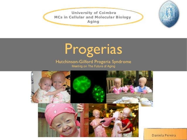University of CoimbraMCs in Cellular and Molecular Biology                 Aging    ProgeriasHutchinson-Gilford Progeria S...