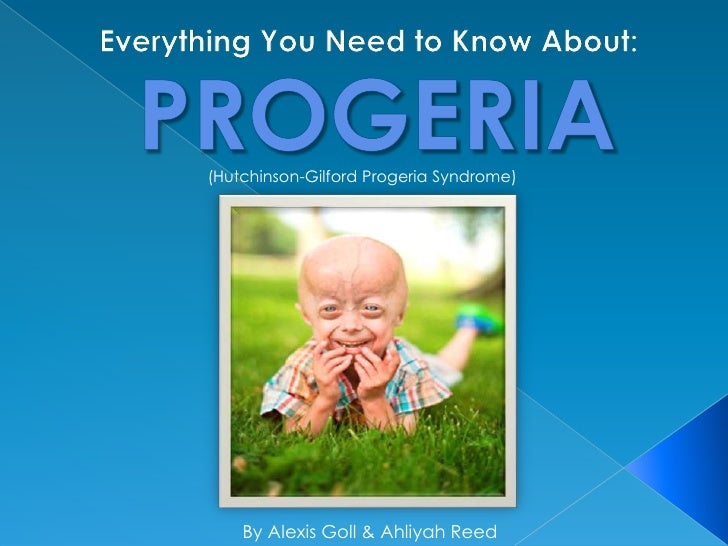 Everything you Need to Know About Progeria