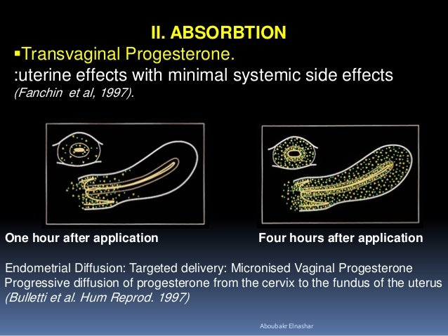 Progestogens in obstetrics: Which type and route????