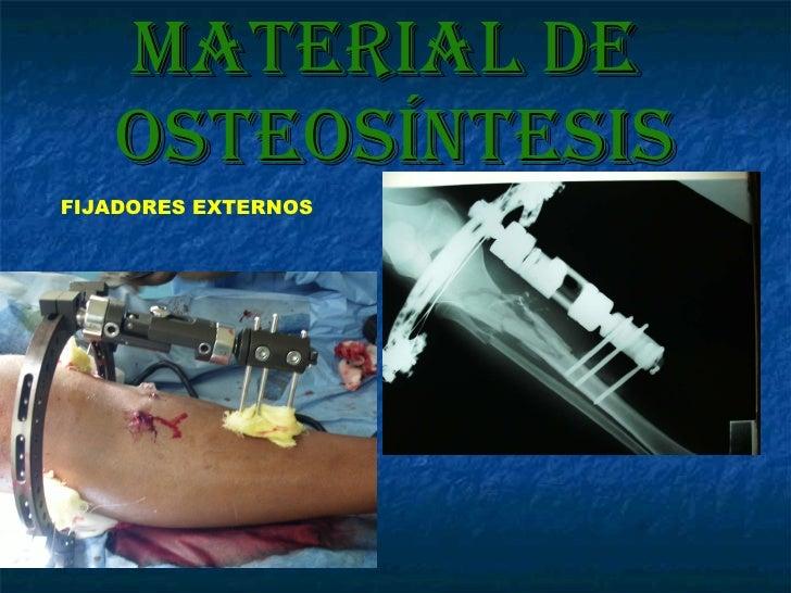 Material de  osteosíntesis FIJADORES EXTERNOS