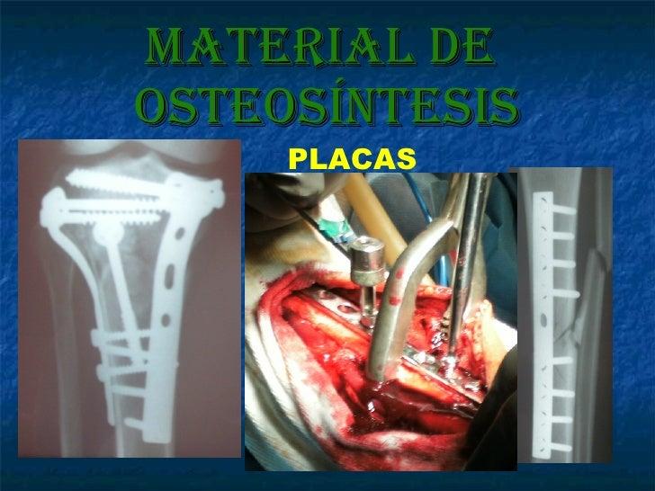 Material de  osteosíntesis PLACAS