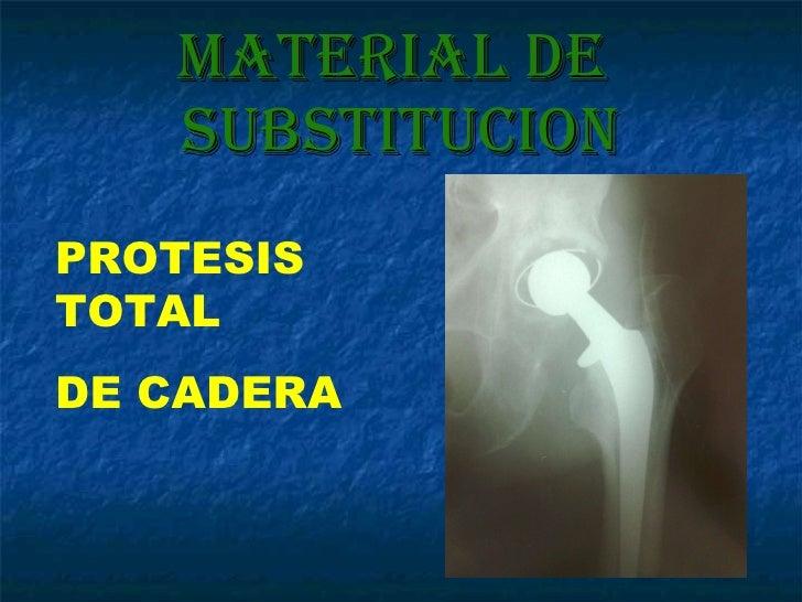 Material de  SUBSTITUCION PROTESIS TOTAL DE CADERA