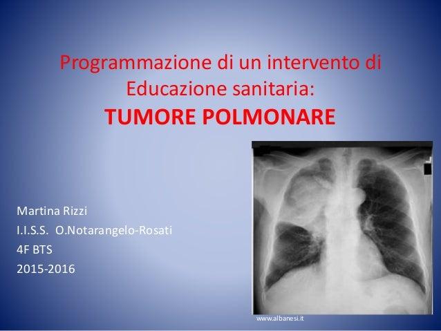 Programmazione di un intervento di Educazione sanitaria: TUMORE POLMONARE Martina Rizzi I.I.S.S. O.Notarangelo-Rosati 4F B...