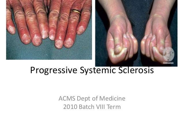 Progressive Systemic Sclerosis ACMS Dept of Medicine 2010 Batch VIII Term