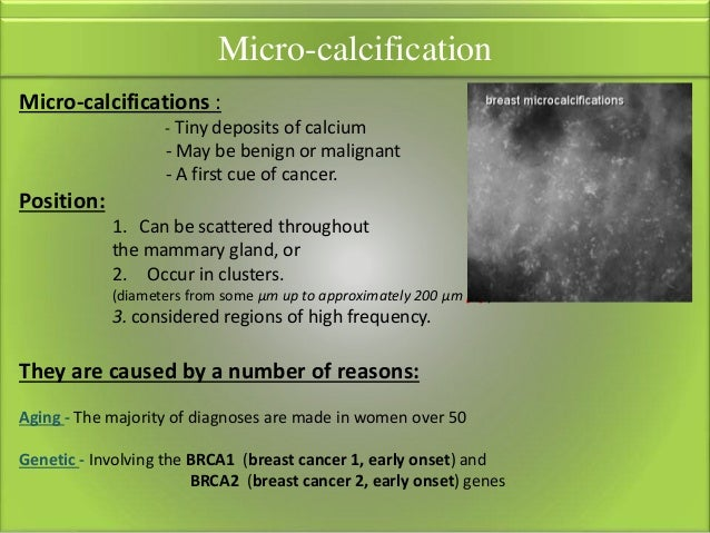 Calcification clusters in breast