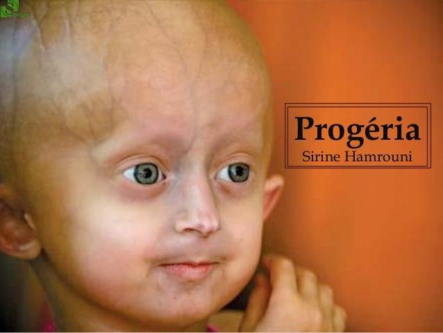 Progéria Sirine Hamrouni