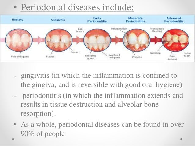 diabetes and periodontal disease a two way relationship
