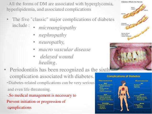 periodontitis and diabetes a two way relationship
