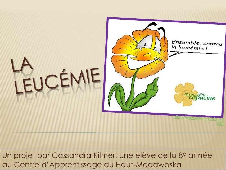 Laleucémie<br />http://www.losc.fr/?r=0,0,15,598<br />Un projet par Cassandra Kilmer, une élève de la 8e année au Centre d...
