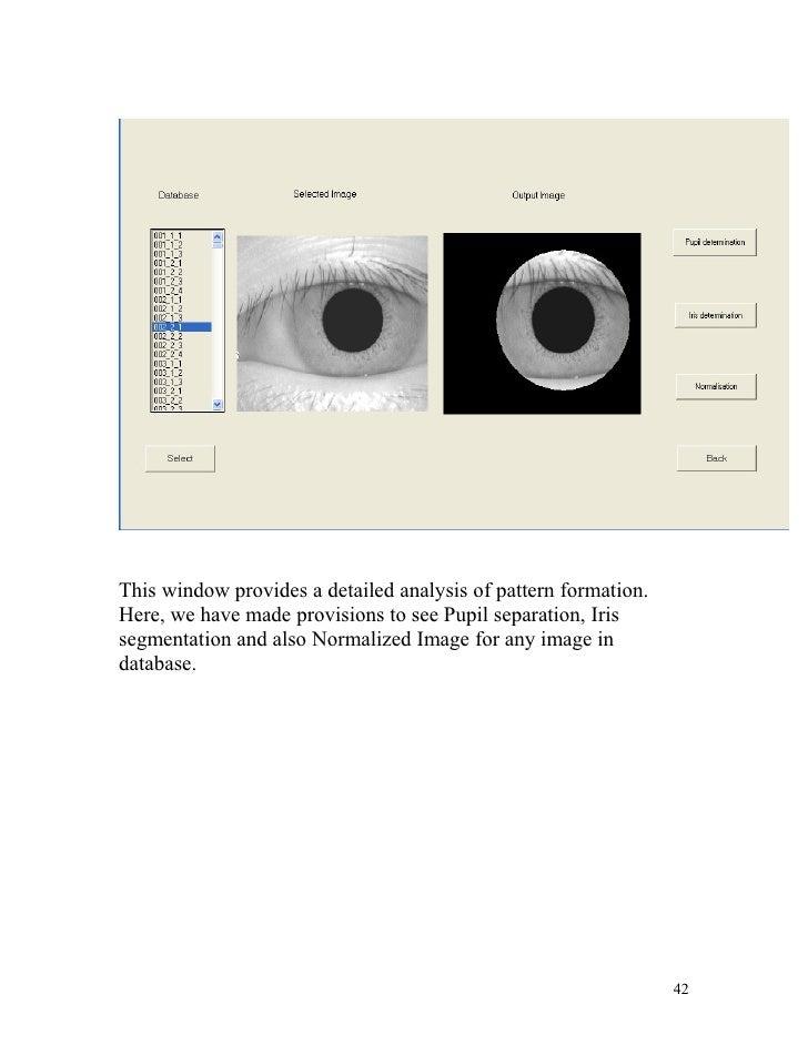 iris recognition thesis libor masek On jan 1, 2003 libor masek published: recognition of human iris patterns for biometric identification.