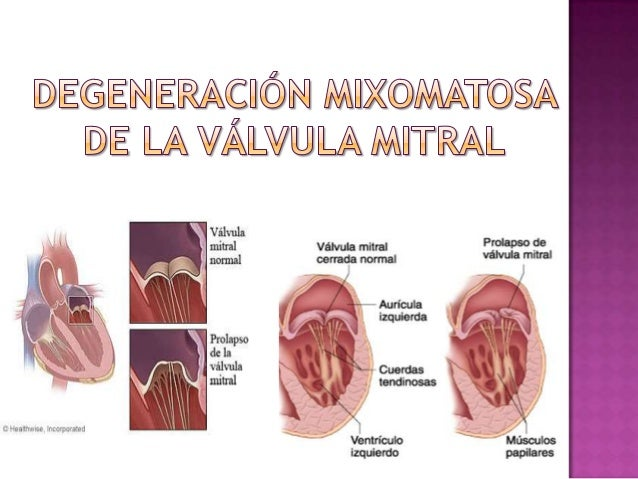 Prolapso Mitral Cardiopatia Reumatica Y Endocarditis Infecciosa