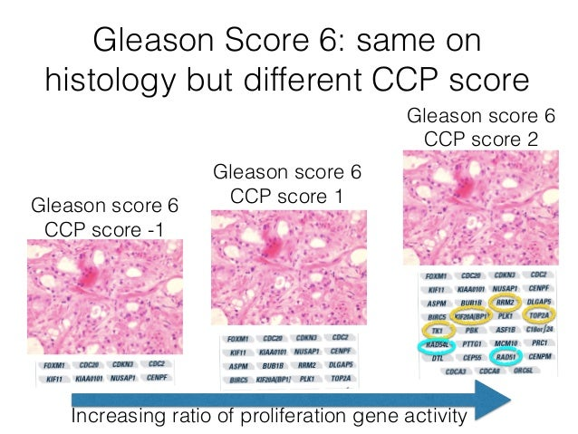 Prostate Cancer Treatment Gleason 9