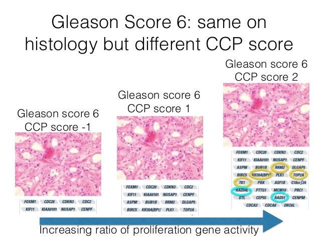 prolaris improving the prognosis of prostate cancergleason score
