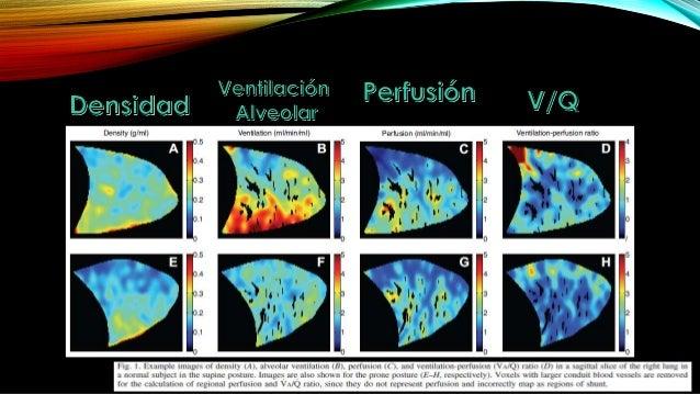 Ventilación y Perfusión Pulmonar en posturas Prono y Supino