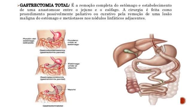 Conseqüências nutricionais, agudas ou crônicas;  anorexia;  diarréia;  Síndrome de Dumping;  perda de peso;  anemia;...