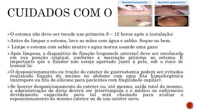  MEEKER MH, ROTHROCK JA. Cuidados de enfermagem ao paciente cirúrgico.10.ed. Rio de Janeiro: Guanabara Koogan, 1997  BRO...
