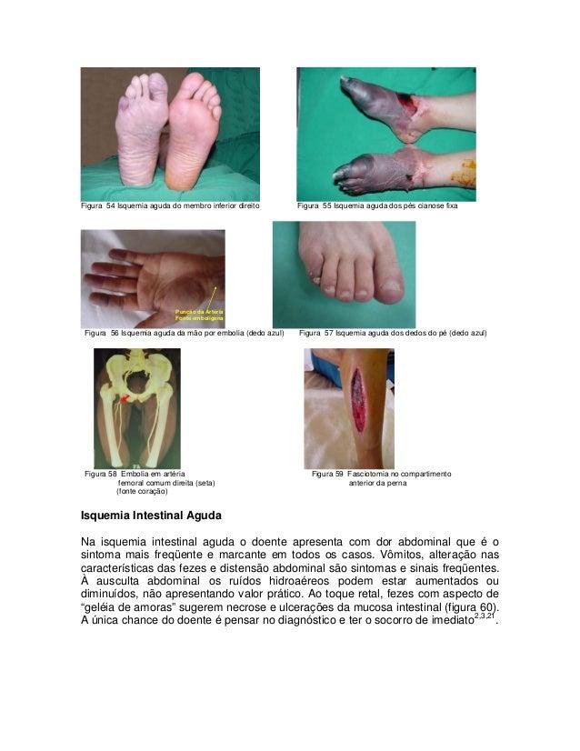 Figura 54 Isquemia aguda do membro inferior direito  Figura 55 Isquemia aguda dos pés cianose fixa  Punção da Artéria Font...