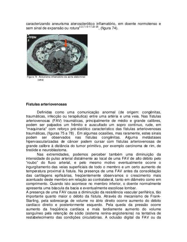 caracterizando aneurisma aterosclerótico inflamatório, em doente normotenso e sem sinal de expansão ou rotura2,3,7,13-17,2...
