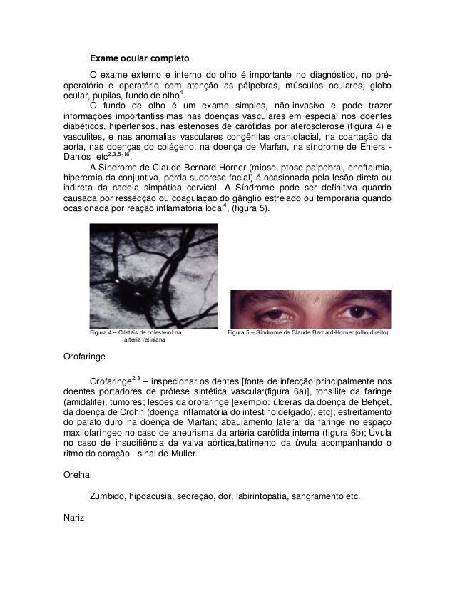 Exame ocular completo O exame externo e interno do olho é importante no diagnóstico, no préoperatório e operatório com ate...