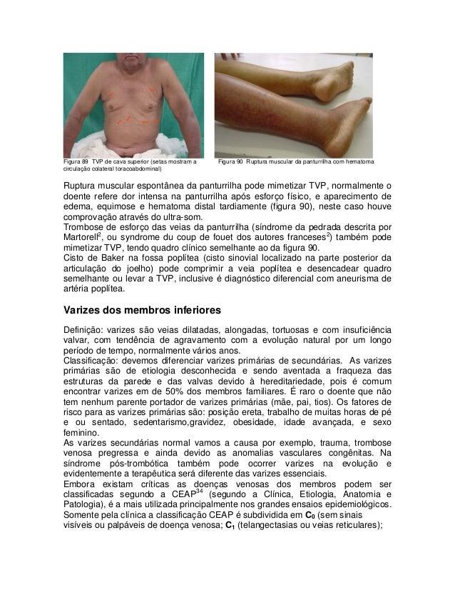Figura 89 TVP de cava superior (setas mostram a circulação colateral toracoabdominal)  Figura 90 Ruptura muscular da pantu...