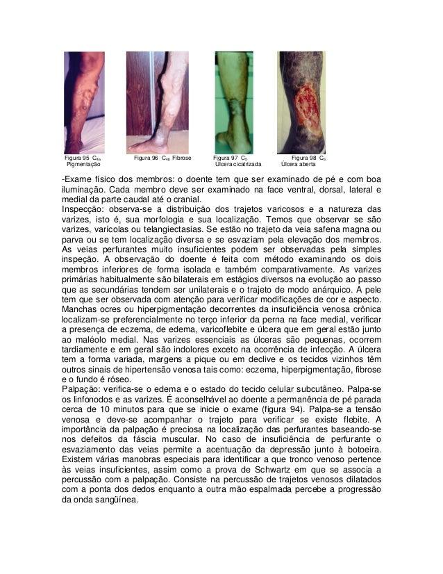 Figura 95 C4a Pigmentação  Figura 96 C4b Fibrose  Figura 97 C5 Úlcera cicatrizada  Figura 98 C6 Úlcera aberta  -Exame físi...