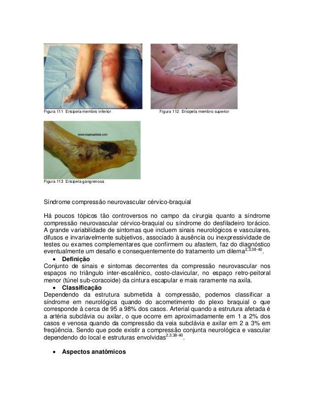 Figura 111 Erisipela membro inferior  Figura 112 Erisipela membro superior  Figura 113 Erisipela gangrenosa  Síndrome comp...