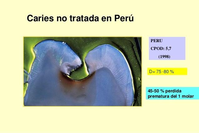 PERU CPOD: 5,7 (1998) Caries no tratada en Perú D= 75 -80 % 45-50 % perdida prematura del 1 molar