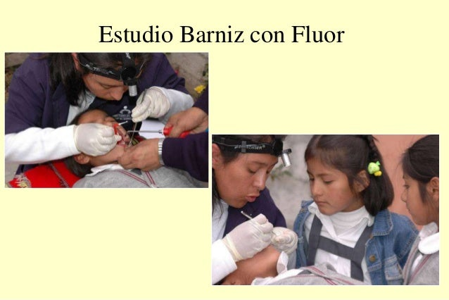 Estudio Barniz con Fluor